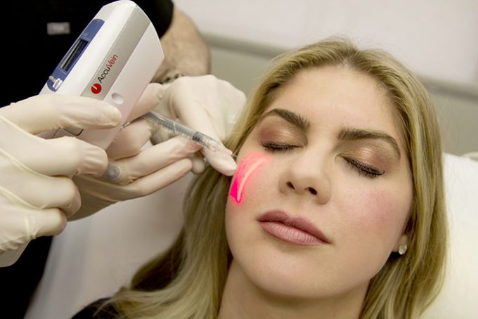 Juvederm Vollure Treatment by Seiler Skin
