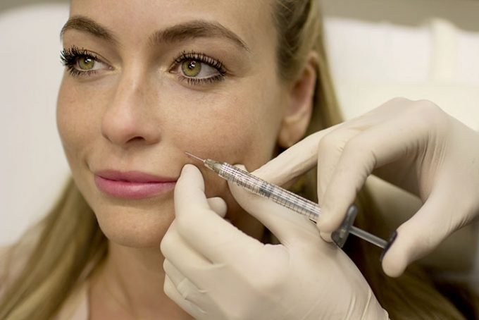 Juvederm XC Treatment by Seiler Skin