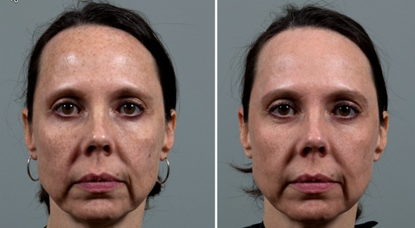 Amazing Results With One Ipl Treatment Seiler Skin