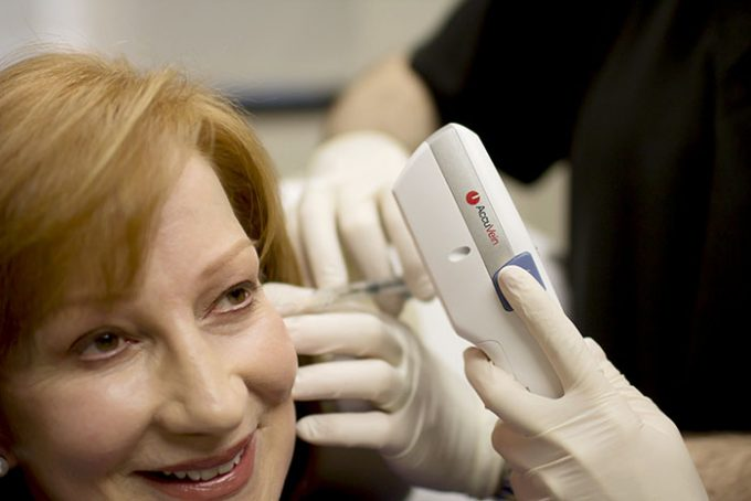 Juvederm Vollure Treatment by Seiler Skin