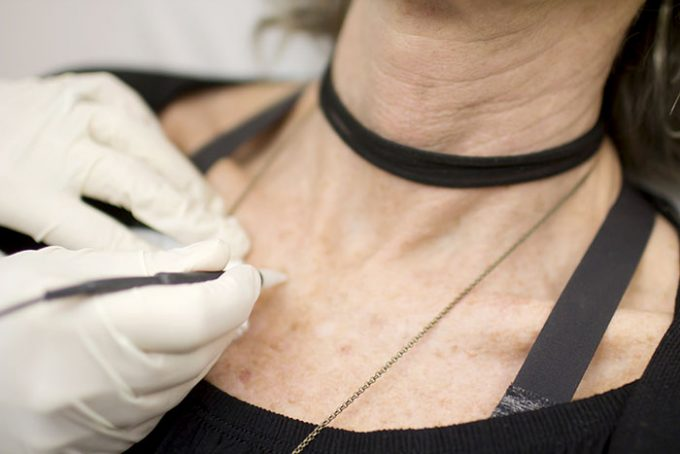 Lamprobe Treatment by Seiler Skin
