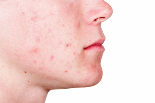 how to stop a huge pimple from scarring
