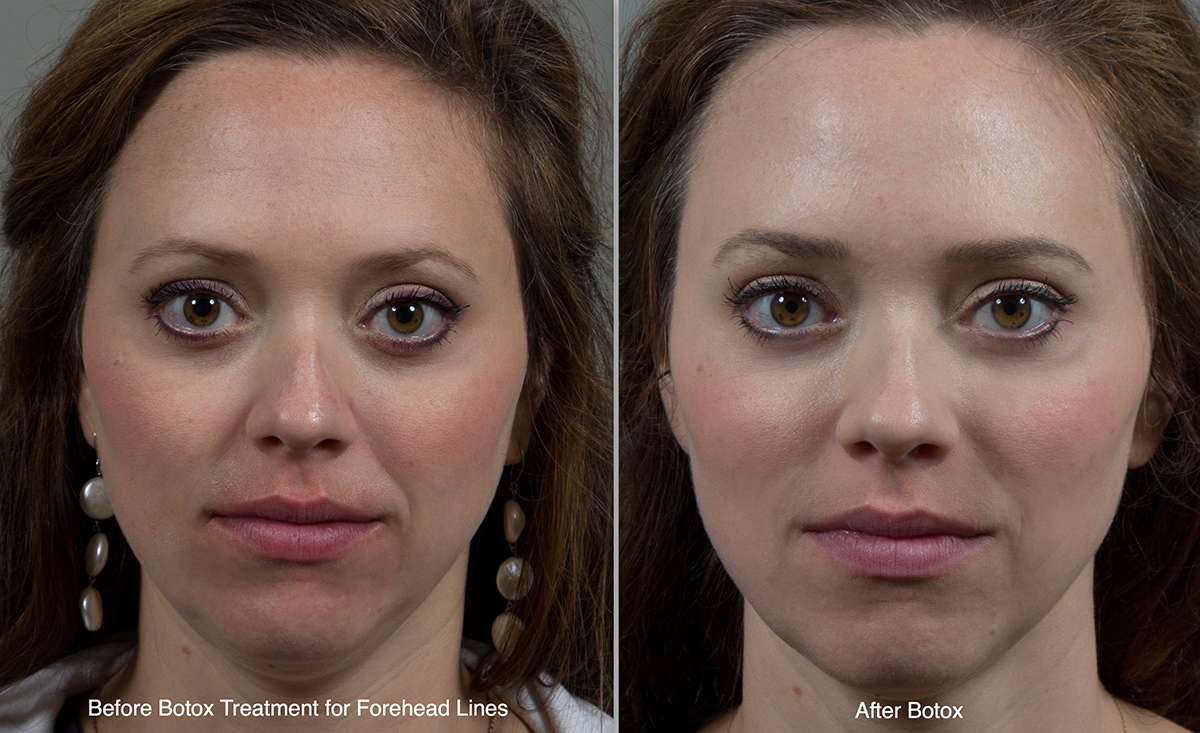 Botox cosmetic injections in birmingham al seiler skin videos solutioingenieria Choice Image
