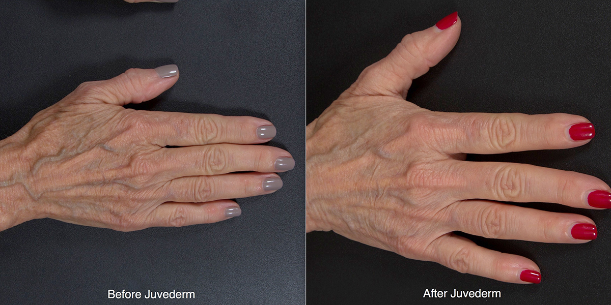 Juvederm vs. Restylane for the Hands – Which is Better?