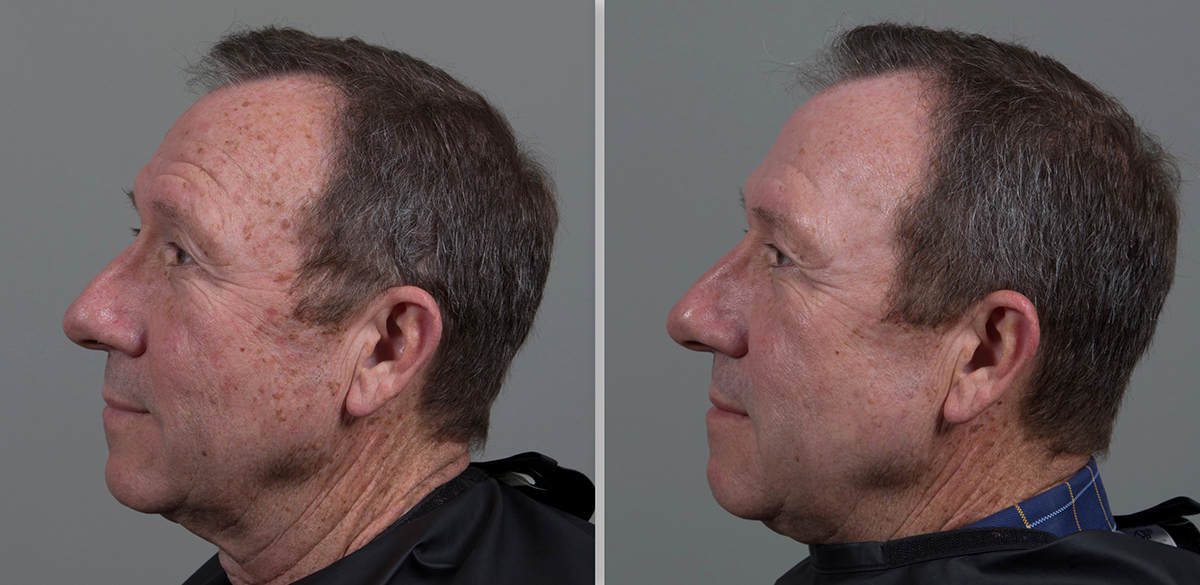 CO2 Laser Skin Resurfacing in Birmingham, AL | Seiler Skin