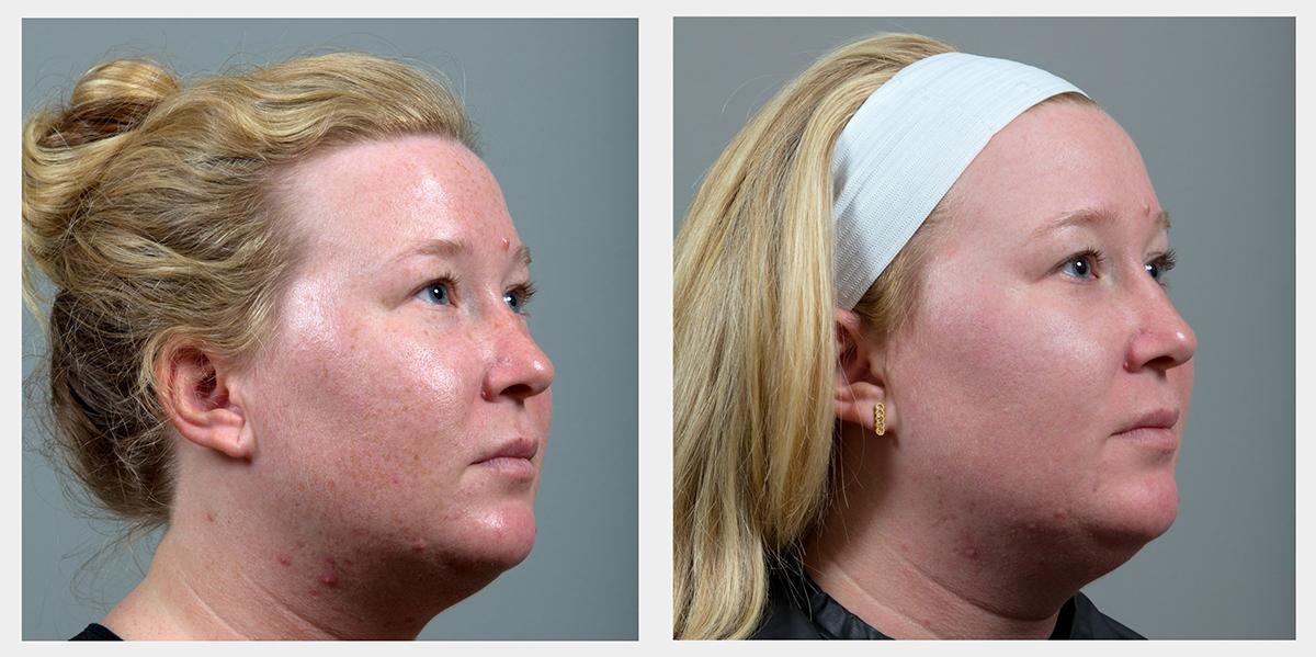 Intense Pulsed Light Treatment In Birmingham Al Seiler Skin